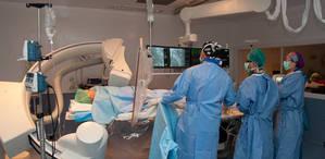 L'Hospital Universitari de Bellvitge, pioner en la implantació d'un stent bioabsorbible metal·lic per lesions a les artèries coronàries