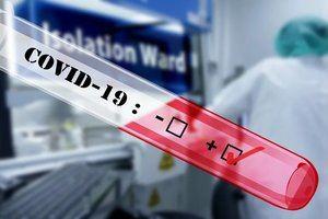 La Diputació de Barcelona distribueix entre els municipis els primers kits de detecció ràpida del covid-19